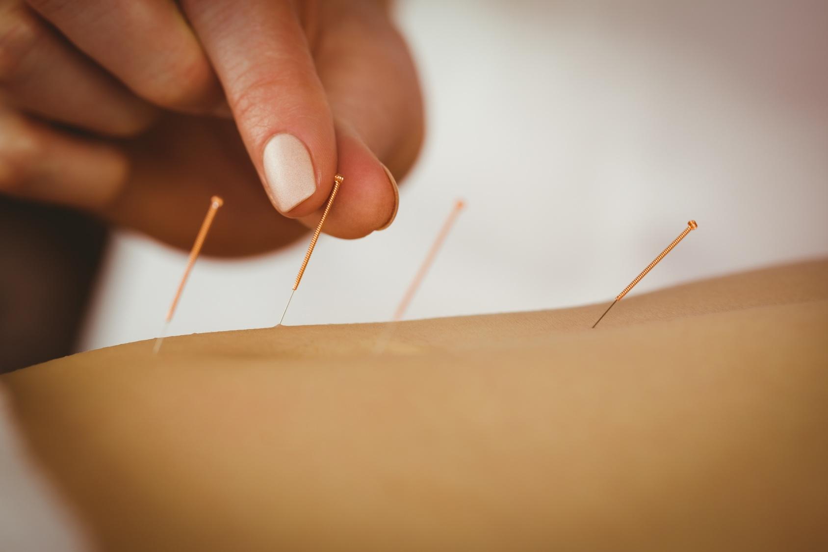 Kurs - Suche igłowanie – medyczna akupunktura – moduł I