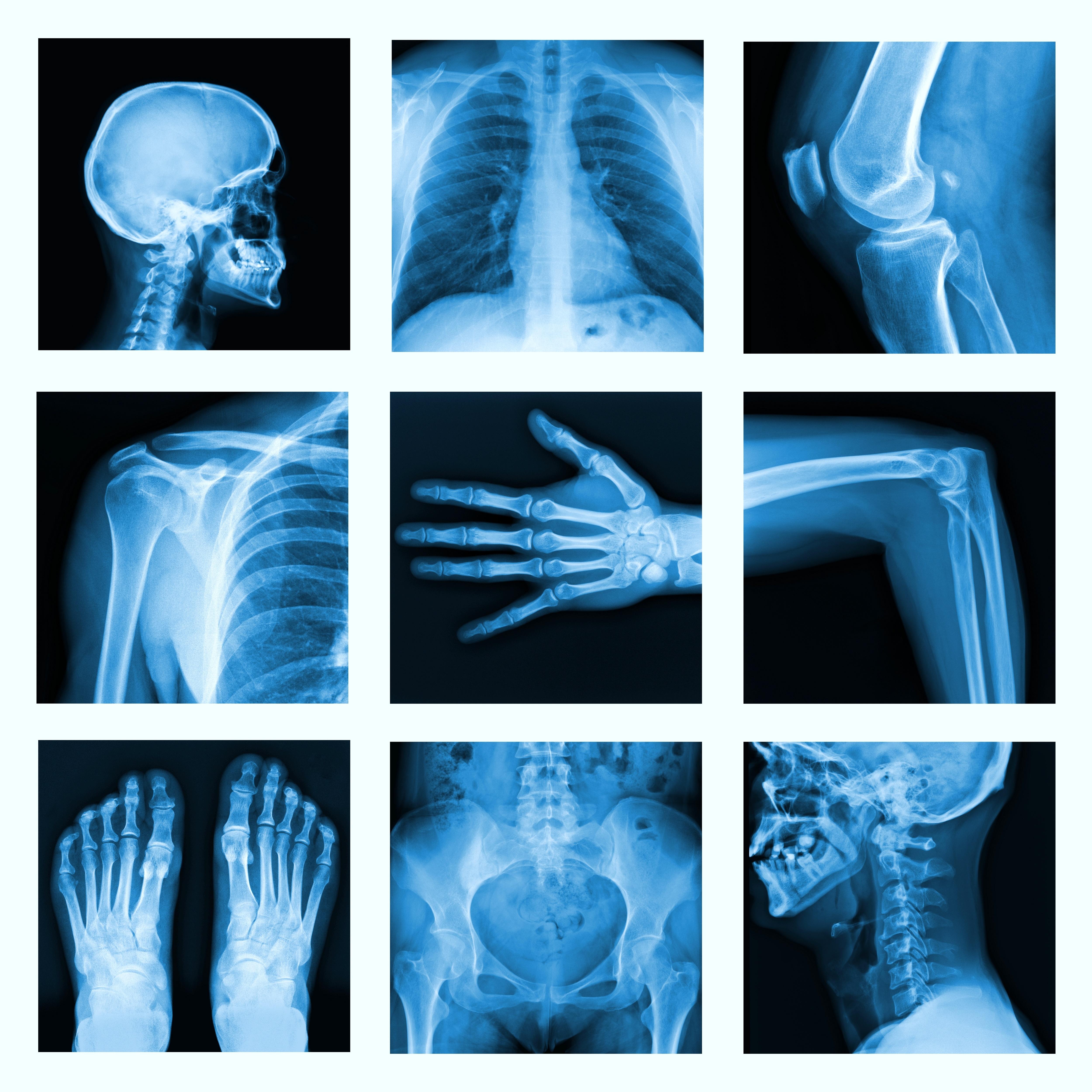 Kurs - Radiologia w praktyce fizjoterapeuty